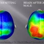 Unknown2 brain